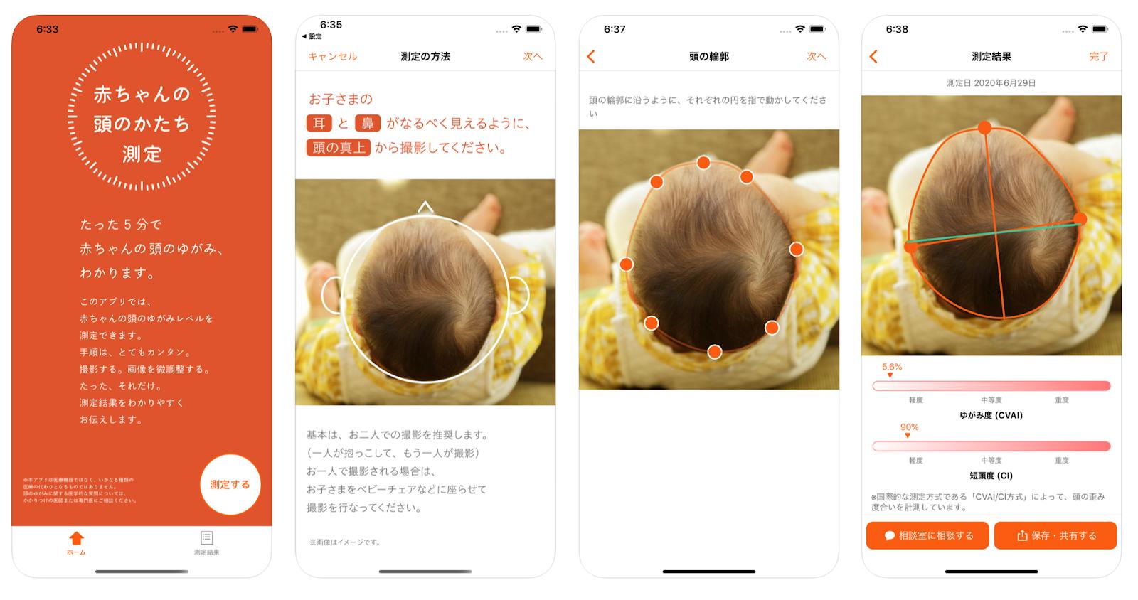 頭のかたちは、アプリで簡単に測定できます
